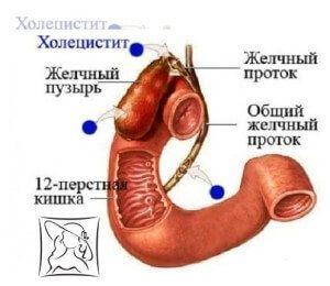 холецистит симптомы у женщин