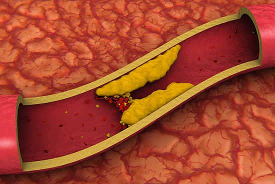 Повышенный холестерин: правила питания